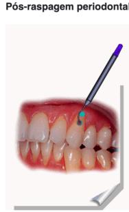 Pós raspagem periodontal