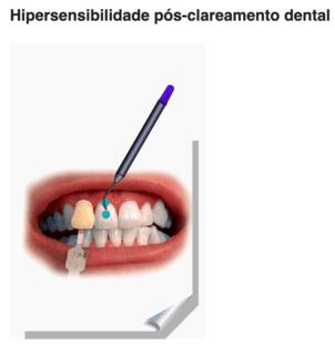 Hipersensibilidade pós clareamento dental