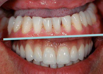 próteses_-implante_1