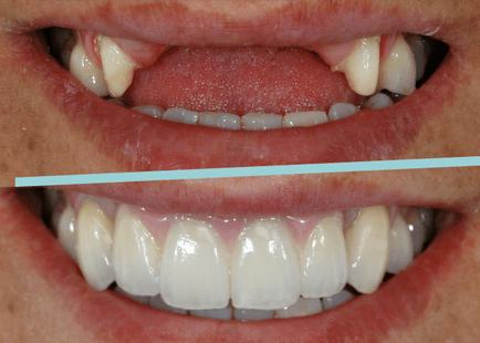 próteses_-implante_2